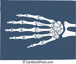 Hand X-ray picture. - Sketch vector element for medical or...