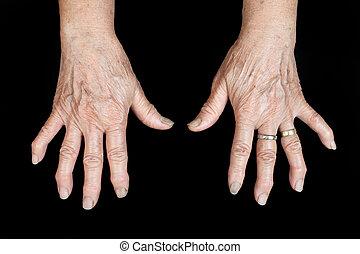 handflächen
