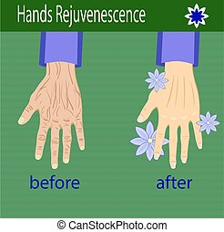 Hands care, before after effect, vector illustration for...