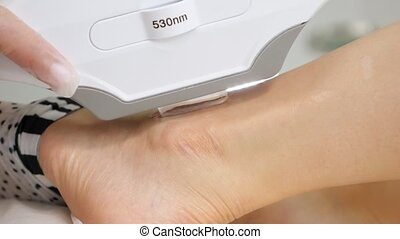 professional hands do laser anti-pigmentation procedure on woman ankle on medical clinic table extreme close-up