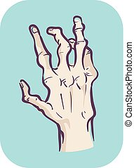 Hands Symptom Joint Deformity Illustration - Illustration of...