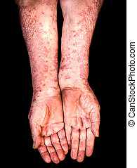 Old female hands with psoriasis on black background