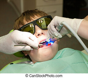 Hardening of dental filling