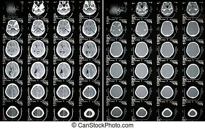Head CT Scan Result - Subdural Hematoma Brain (Left) and...