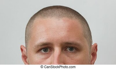 Head of man - growing process of hair of young caucasian...