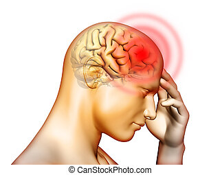 Headache - Medical illustration about pain located in the...