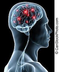 headache migraene - 3d rendered illustration of a human head...