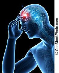 Headache - Illustration of a man having a headache