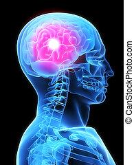 headache/migraene - 3d rendered x-ray illustration of human...
