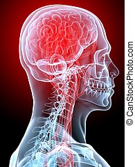 headache/migraine - 3d rendered illustration of human head ...