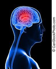 headache/migraine