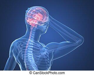 headache/migraine illustration - 3d rendered anatomy...
