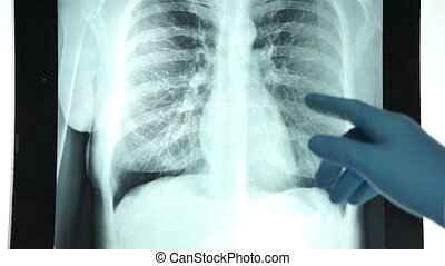 Health Doctor Pointing Chest X-ray