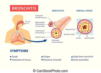 Healthy airway and bronchitis diagnosis symptoms medical banner vector illustration.