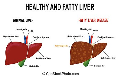 Healthy and fatty liver, vector illustration (for basic medical education, for clinics & Schools)