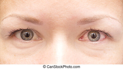 healthy and irritated eye - close up of healthy and...