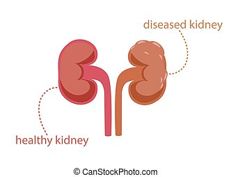 Healthy and painful kidney clipart. Pink clear parenchyma working organ and gray tumor covered ureter with stones vector inflammation.
