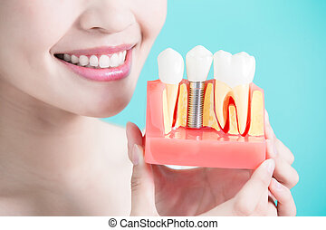 healthy dental concept - woman take tooth implant false...