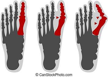 Healthy foot and ones with hallux valgus deformity - Vector