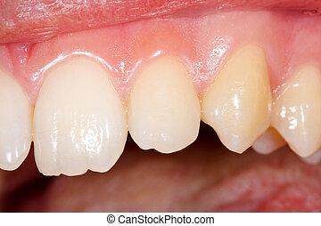 Healthy human teeth