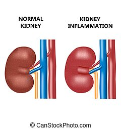 Healthy kidney and kidney infection.