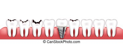 Healthy teeth, teeth with caries and dental implant, beautiful bright illustration. Various teeth conditions