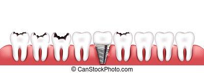 Various teeth conditions - Healthy teeth, teeth with caries...