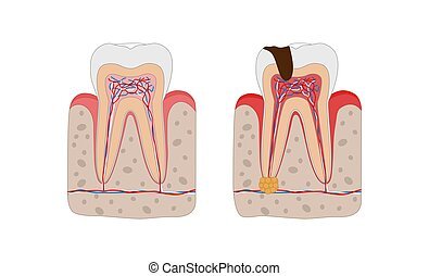 Healthy tooth and unhealthy tooth with tooth decay and...