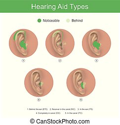 Hearing Aid Types - Hearing aid for people with hearing ...