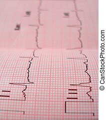 heart analysis scheme - An ECG heart analysis scheme with...