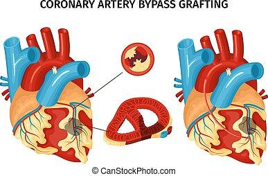 Heart Anatomy Bypass Illustration - Anatomy of heart with ...