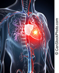 Heart attack - 3d rendered illustration - heart attack