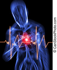 heart attack - 3d rendered illustration of a transparent ...