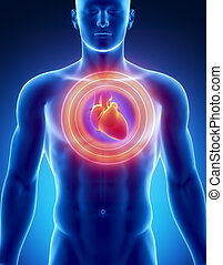 Heart attack concept - Male anatomy of human organs in x-ray...