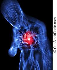 heart attack - 3d rendered illustration of a transparent...