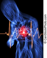 heart attack - 3d rendered illustration of a transparent...