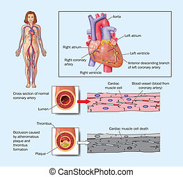 Heart attack due to blocked artery - Drawing of the heart...