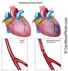 Anatomy of a heart attack