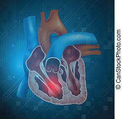 Heart attack - Illustration of a heart attack