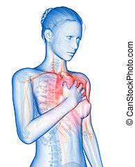 Heart attack - medical 3d illustration - heart attack
