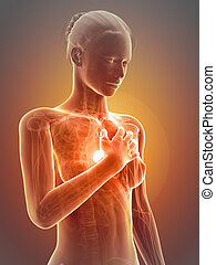 Heart attack - Medical illustration - woman having a heart ...