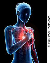 Heart attack - Medical illustration - woman having a heart...