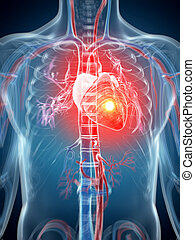 Heart attack - 3d rendered illustration - heart attack