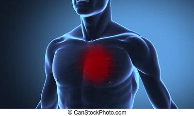 Heart attack - human heart concept
