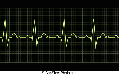 Heart beat. Cardiogram. Cardiac cycle