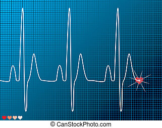 Medical abstract ecg monitor overlayed on an technical grid