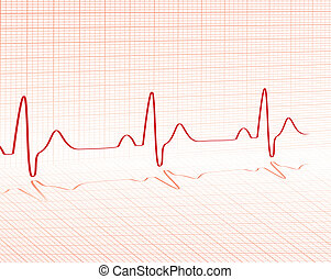 heart beat red grid layed over a background with room for...
