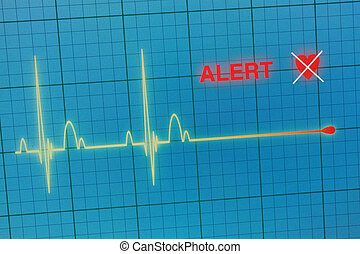 Heart beats cardiogram on the monitor.