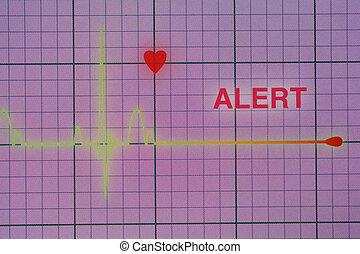 Heart beats cardiogram on the monitor.