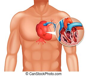 Heart cancer in human